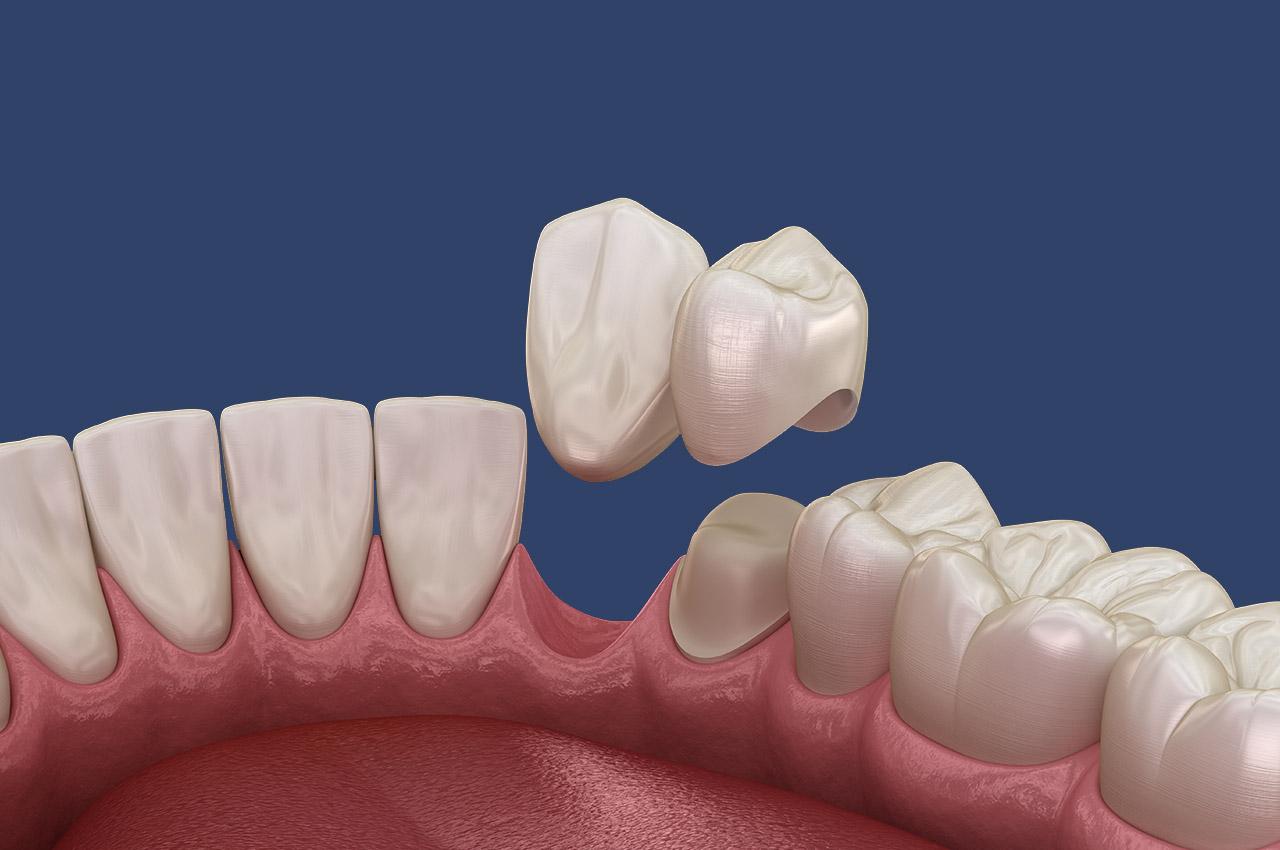 Zahnlücken schließen