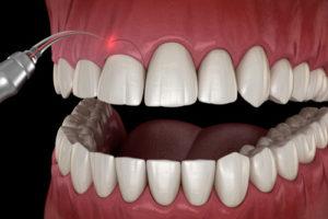 Abbildung Eingriff des Zahnfleischs für die Zahnfleischkorrektur