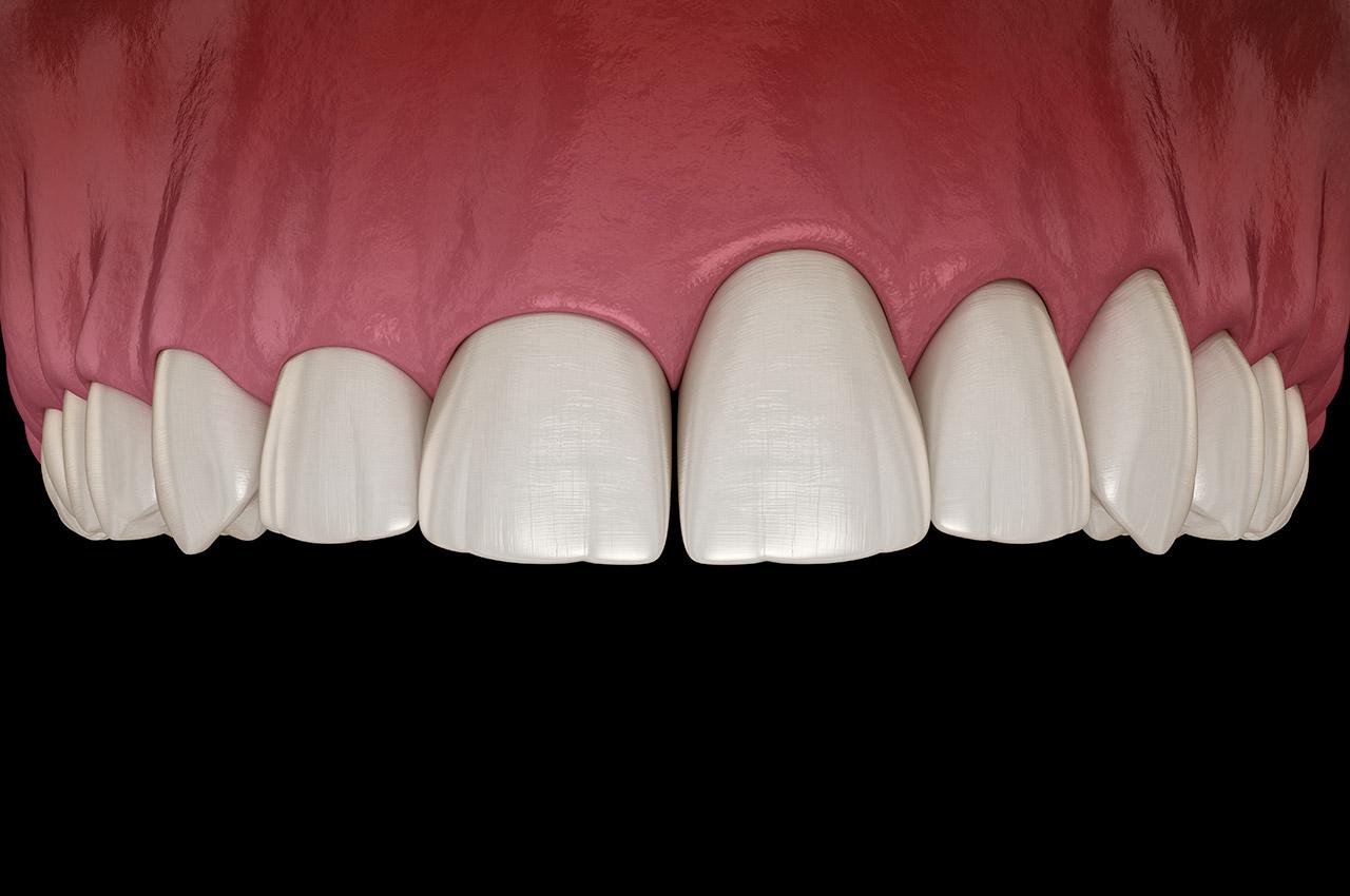 Zahnfleischkorrektur