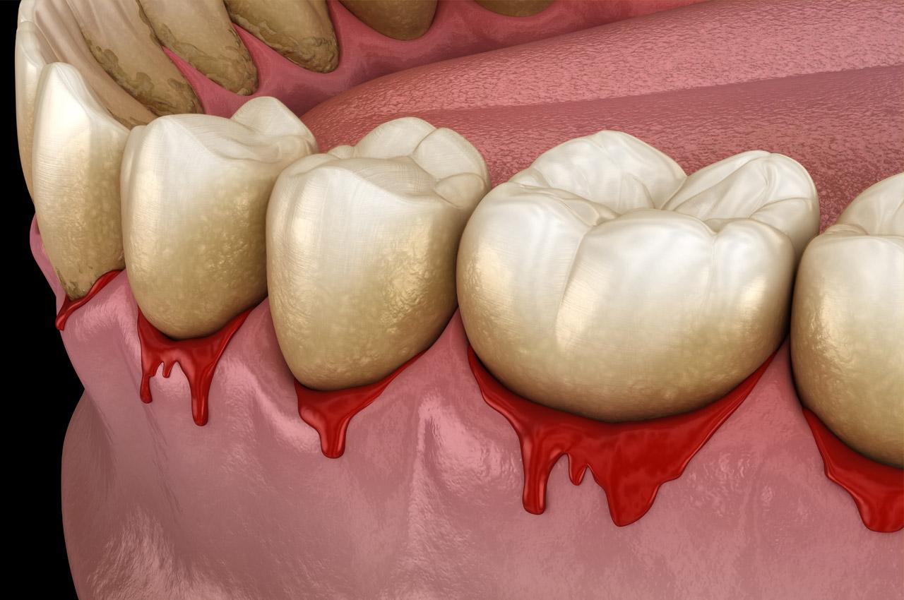 Mein Zahnfleisch blutet, wenn ich Zahnseide benutze